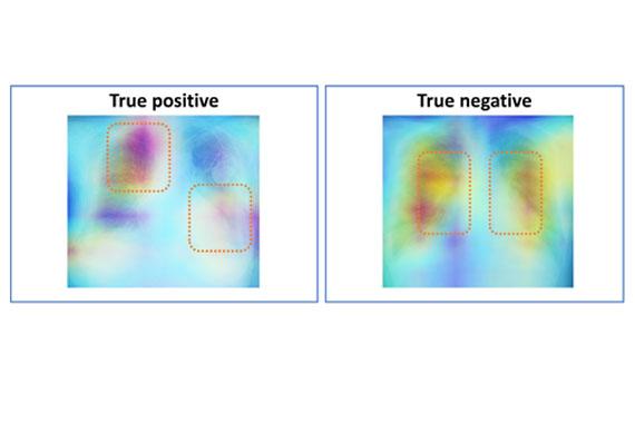 古徳教授らの共同研究グループが胸部単純X線画像から肺高血圧を検出する人工知能(AI)を開発しました