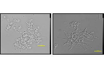 微生物シグナル物質の利用