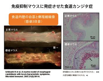 免疫抑制マウスに発症させた食道カンジダ症