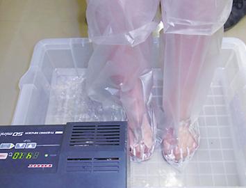 足白癬患者の足浴療法(植物精油を含む温水での足浴)